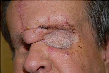 Leiomyosarcoma Eyerounds Org Ophthalmology The