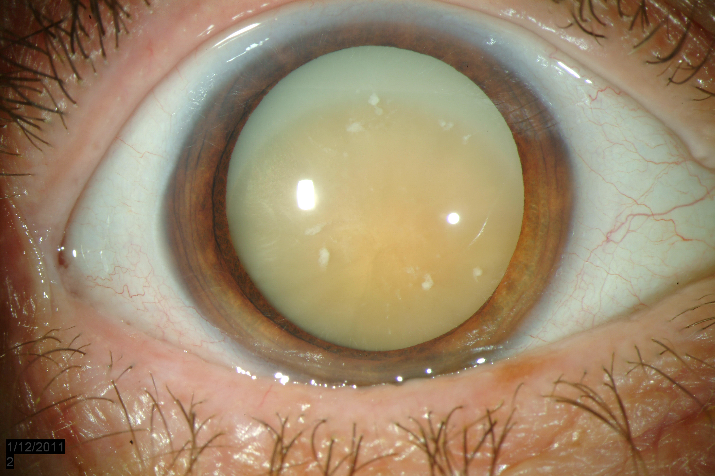 cataracts images