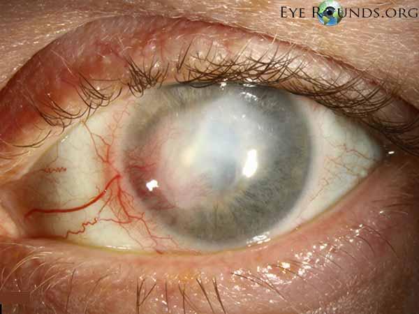Treatment of herpes stromal keratitis