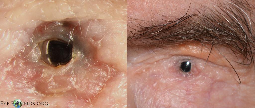 Toxische epidermale necrolyse (TEN) en Stevens Johnson ...