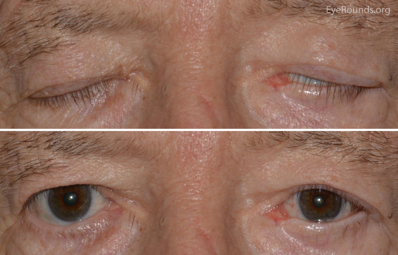 facial nerve and eye closure