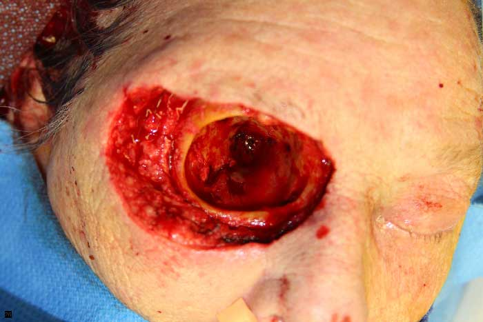 necrotizing facsiitis Necrotising fasciitis is a clinical diagnosis initially, the skin is smooth, tense and  shiny with no sharp demarcation, and progresses to develop a.