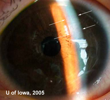 Handheld Slit Lamp Exam During Examination Under Anesthesia. Note Stromal  Edema Superiorly (arrows).