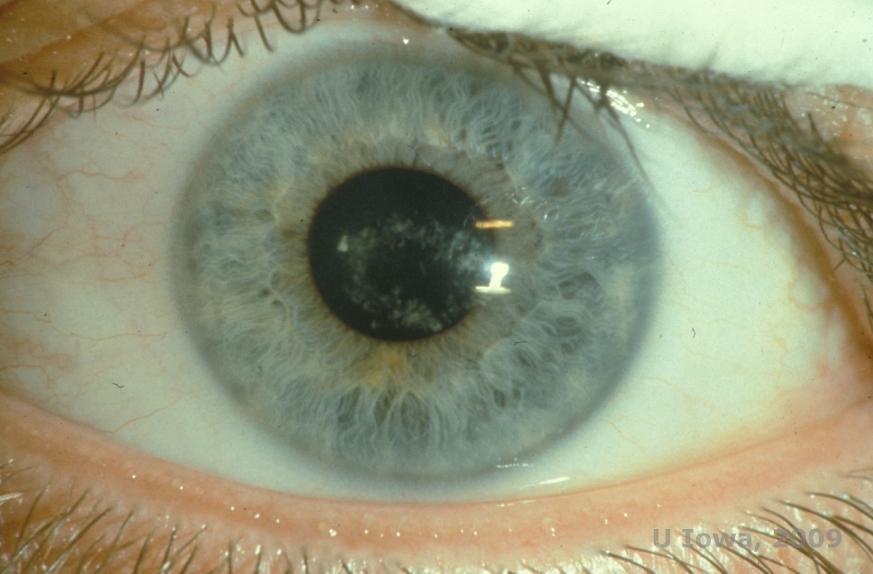 Meesmanns corneal dystrophy