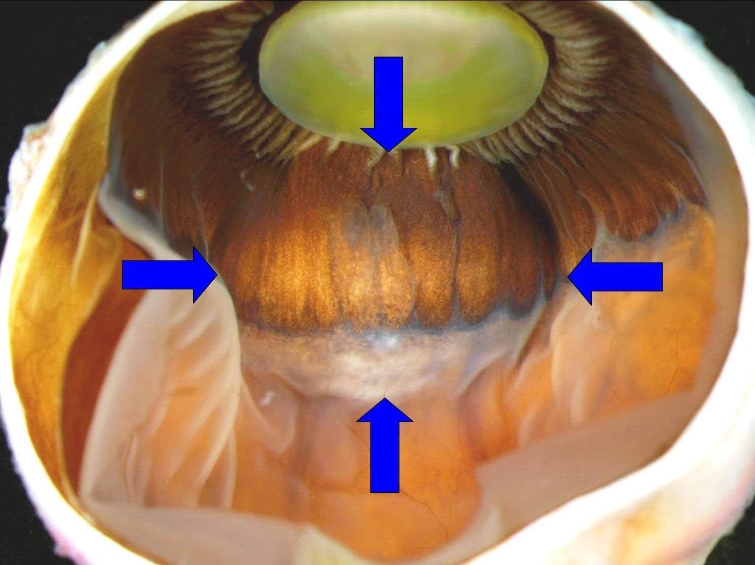 Clinicopathologic Correlation: Ciliary Body Leiomyoma. EyeRounds.org ...