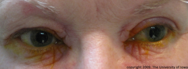 Some Dry, Scaly, Itchy Eyelid Causes | Sterling Minerals