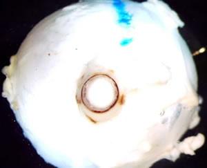 Optic sheath extradural and subdural hemorrhage