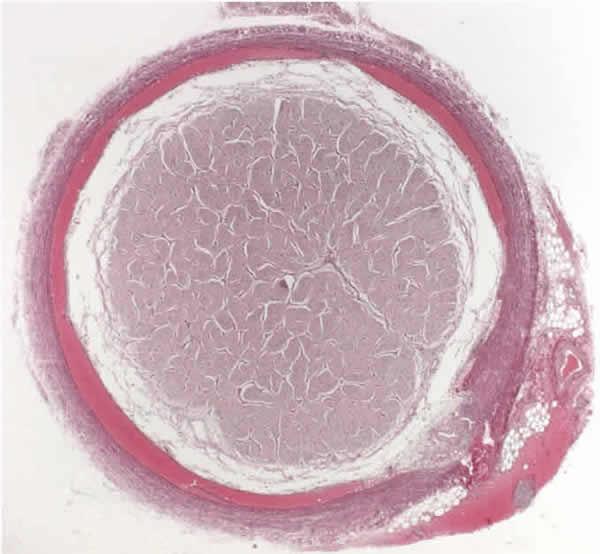 Subdural and extradural optic nerve sheath hemorrhage