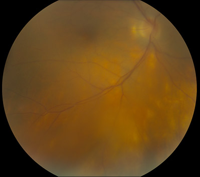 Birdshot Choroiditis case with photos 2c-fundus-birdshot-choroiditis.jpg