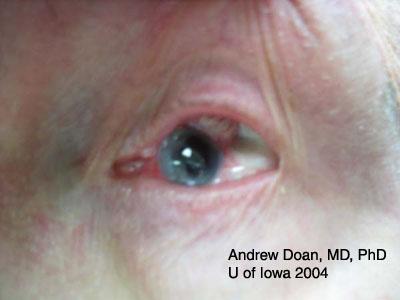Ocular Trauma, assessment and management