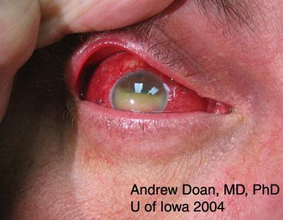 Doxycycline Drop Eye