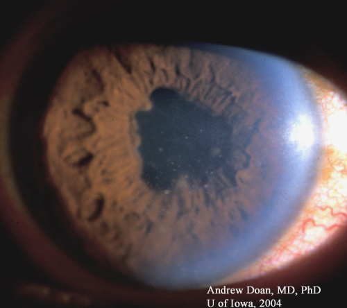Uveitis photos redeye2_03042004.jpg