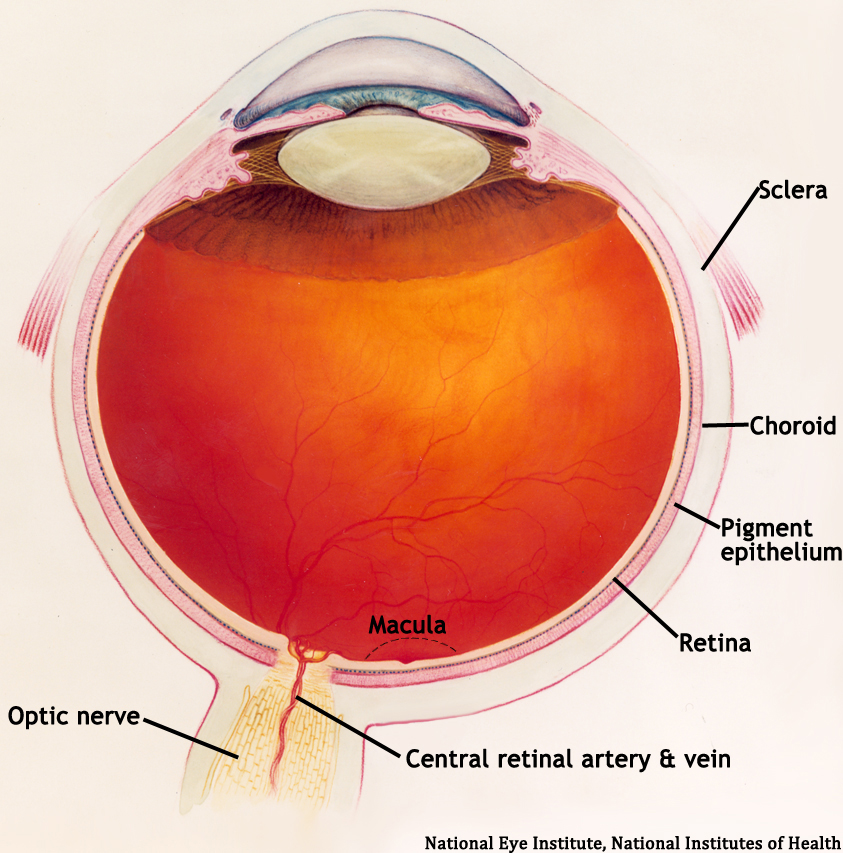 Diabetic Retinopathy for Medical Students. EyeRounds.org ...