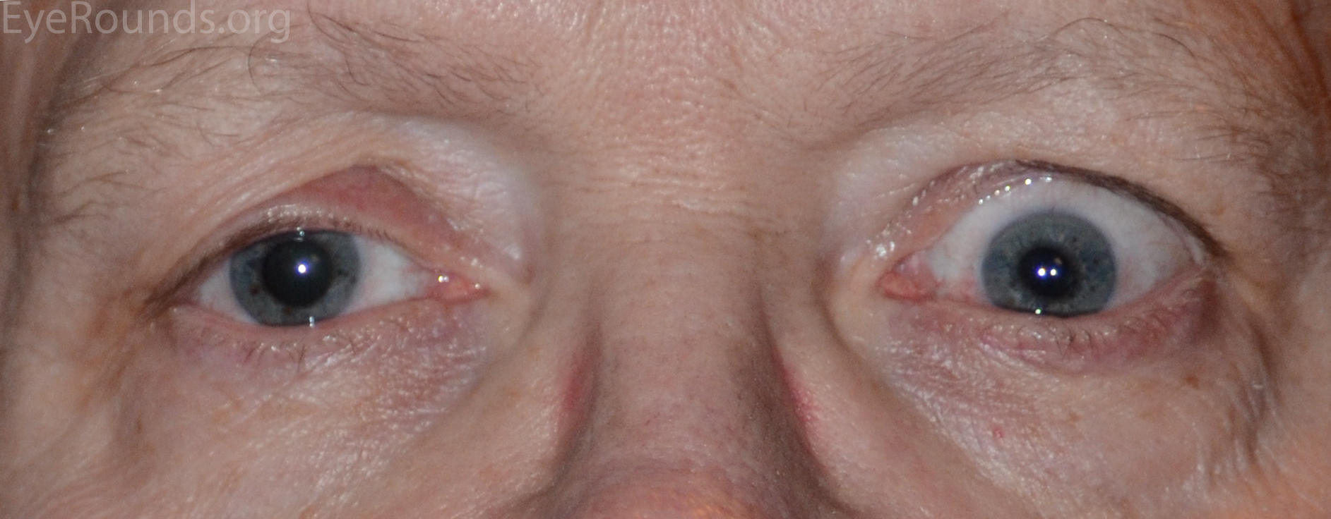 A Primer on Ptosis